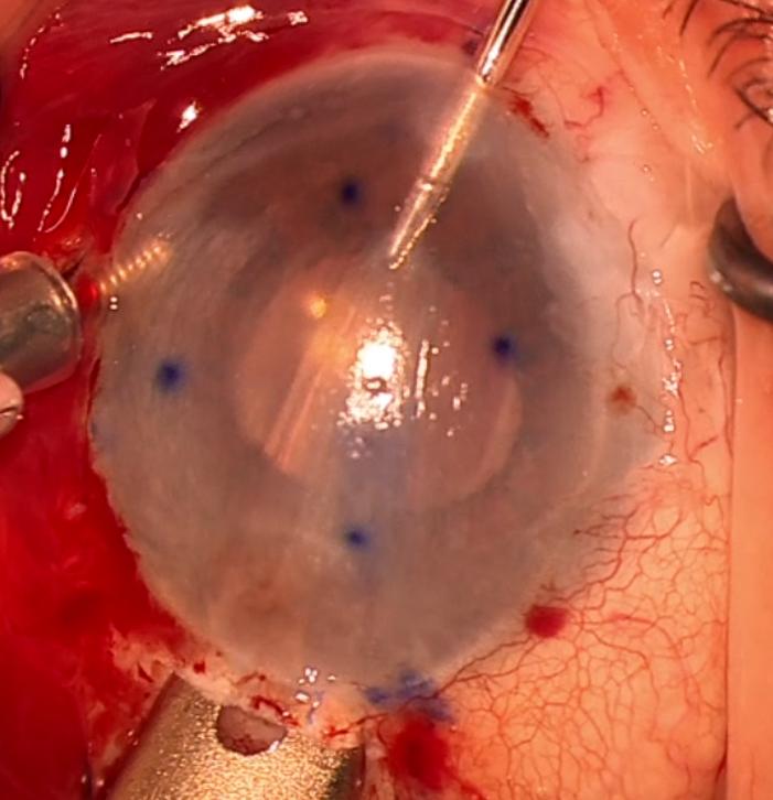 הכנסת שתל קרנית דיסק לתוך העין